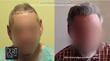Dermhair Clinic Releases Latest Body Hair Transplant Repair Patient...