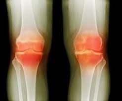 Dietary Supplement for Joint Pain and Arthritis Recalled