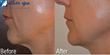 sculptra aesthetic,non-surgical face-lift,ulterapy,anti-aging treatments,favial filler and volumizer,wrinkle reducer,reduce saggy skin