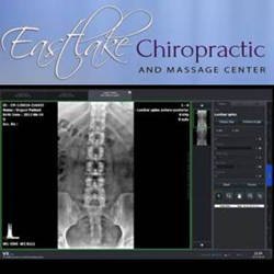 Seattle Chiropractor - Eastlake Chiropractic and Massage Center - Digital X-Rays