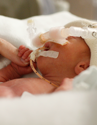 premature baby; preemie