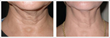 Sciton BBL™ SkinTyte Laser Technology, Used for Skin Tightening on the...