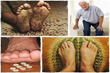 Peripheral Neuropathy Solution Review   Can This Method Help People Eliminate Their Peripheral Neuropathy Fast?