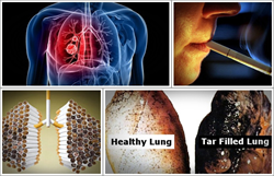 lung detoxification review