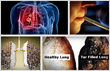 Lung Detoxification Review Exposes How To Detoxify The Lung –...
