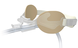 Anchor Fast Guard Oral Endotracheal Tube Fastener with Integrated Tube Protection