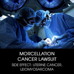 To Discuss Filing A Morcellator Lawsuit, Please Contact Alonso Krangle Llp At 1-800-403-6191 Or Visit Our Website, Http://Www.Fightforvictims.Com