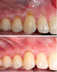 Before & After Gum Recession Treatment