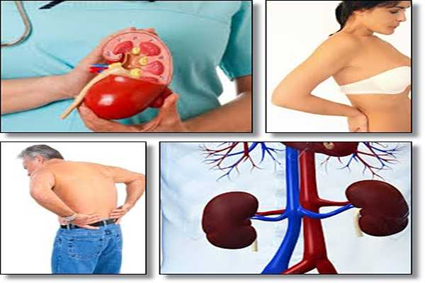 phentermine and kidney issues