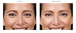 FDA Approves Botox® Cosmetic to Diminish Crow's Feet
