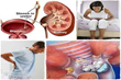 Kidney Stone Removal Report Review   How To Treat Kidney Stones Qickly And Naturally