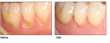 Top Periodontist Dr. Stephen Brown Brings Revolutionary Gum Recession...