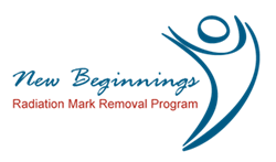 New Beginnings radiation mark removal program