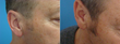 Before and after sideburn facial hair transplant