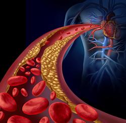 High cholesterol risks