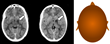 Post-operative CT scans with annotation