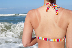 how to treat sunburn blisters fast at home