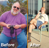 Gastric Bypass Surgery Success Story by TBS