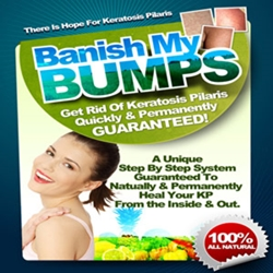 Banish My Bumps Review – The Key To Get Rid Of Keratosis Pilaris Naturally And Permanently In 7 Days