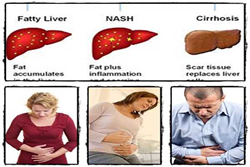 Fatty Liver Bible & Ezra Protocol Review – The Secrets To Eliminate Fatty Liver Effectively And Permanently – hynguyenblog.com