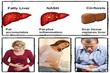 Fatty Liver Bible & Ezra Protocol Review – the Secrets to...