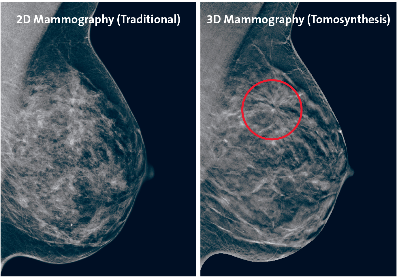 breast tomosynthesis images Fastest, highest resolution 3d™ images 1 unleash the power of the industry's fastest and highest resolution breast tomosynthesis system on the market 1 offering.