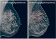 N J Breast Center Agrees 3D Mammography Is More Effective in Finding...
