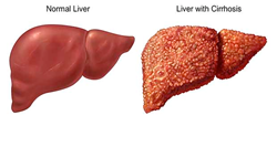 Liver Cirrhosis Bible & Ezra Protocol Review Reveals The Secrets To Treat Liver Cirrhosis Disease Quickly And Naturally