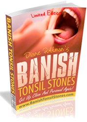 Banish Tonsil Stones Review Introduces A Natural, Scientifically Proven Way To Get Rid Of Tonsil Stones Permanently