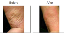 PelleFirm before and after for firmer and more youthful skin