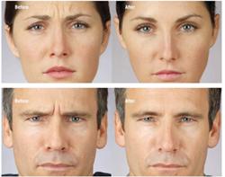 Xeonine,Botox,anti-aging,