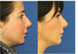 Now in Boston You Can Get Better Looking More Proportional Chin...