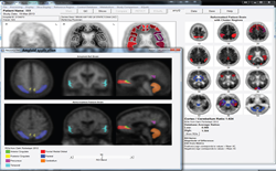 NeuroQ brain imaging software