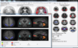 Syntermed's NeuroQ™ 3.7 for SPECT Brain Imaging to Be Previewed at SNMMI