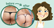 Cellulite Factor: Review Exposes Cellulite Reduction Method Developed...