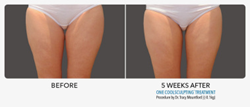 Coolsculpting Inner Thigh Gap Improvement