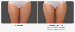 Coolsculpting Inner Thigh Gap Improvement