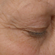 M2 Revitalizing Eye Repair Cream Before Pictures