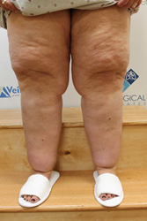 Lipedema patient Vicki shows her legs