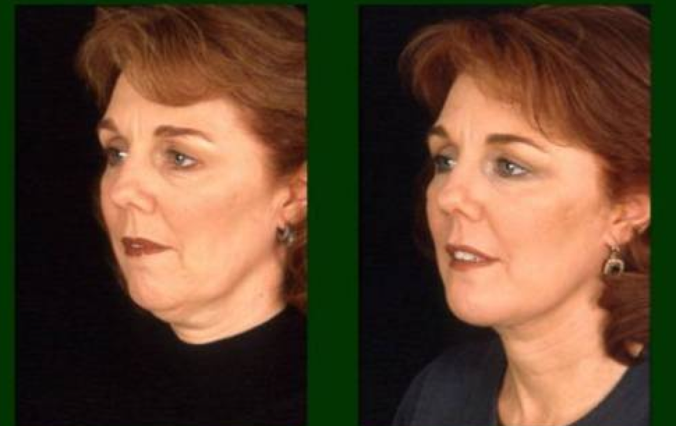 Ethos Spa Now Offers Non Surgical Botox Neck Lift