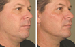 Botox,anti-aging treatments,anti-wrinkle therapies,non-invasive neck lift, surgery-free neck lift