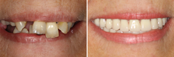 The revolutionary All-on-Four dental implants procedure now makes it possible for patients to achieve the smile of their dreams in just one day.