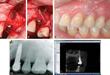 Guided Bone Regeneration Treats Implant Lesions