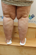 Vicki's legs show the effects of lipedema