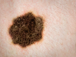 Melanoma, the most deadly skin cancer, is preventable.