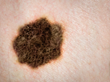Dr. F. Victor Rueckl Warns of Rising Number of Cases of Melanoma, The...