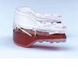 Fairfield CT Dentist Sleep Apnea Product