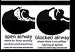 Fairfield CT Sleep Apnea