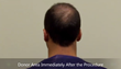 FUE hair transplant patient immediately following procedure with no-shave technique