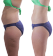 15 minutes of Fascia Blaster allowed her fat to redistribute and inches to be lost